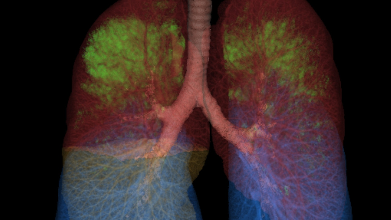 thoracic vcar lung clinical.