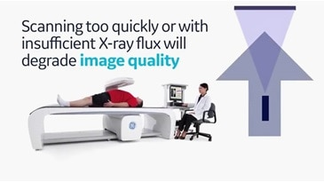 Lunar iDXA Technology from GE Healthcare provides excellent image quality