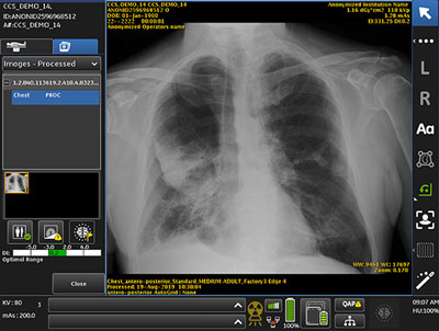 AI critical care suite processed x-ray